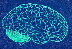 brain Как машина почти стала человеком. Страница из истории программирования